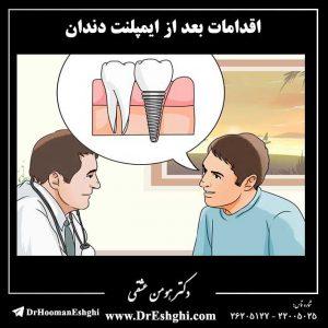 اقدامات بعد از ایمپلنت دندان