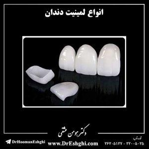 انواع لمینیت دندان