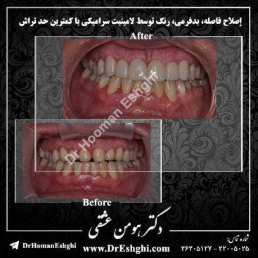 لامینیت دندان1