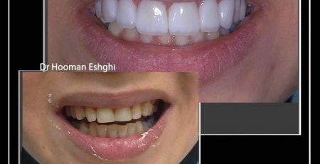 آیا لمینیت سبب آسیب رساندن به دندان ها می شود ؟