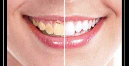 شما عزیزان جهت کسب اطلاعات بیشتر در خصوص لمینت می توانید با شماره های زیر تماس حاصل فرمایید : شماره های تماس : ۲۲۰۰۵۰۲۵،۲۶۲۰۵۱۲۷ برخی از خدمات دکتر هومن عشقی دندان پزشک زیبایی : لمینیت ایمپلنت بلیچینگ سفید کردن دندان اصلاح طرح لبخند و… منتظر نظرات و پیشنهادات شما هستیم با تشکر مدیریت سایت دکتر هومن عشقی دندانپزشک زیبایی