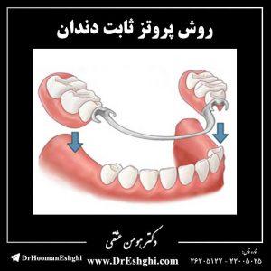 روش پروتز ثابت دندان
