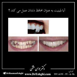 آیا لمینیت به عنوان محافظ دندان عمل می کند ؟