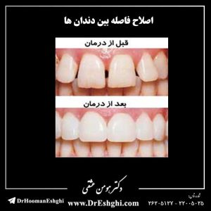 اصلاح فاصله بین دندان ها