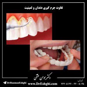 تفاوت جرم گیری دندان و لمینیت