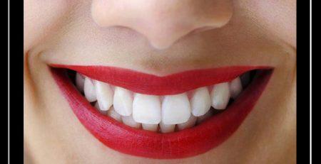 لبخند هالیوودی