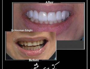 اصلاح طرح لبخند در تهران