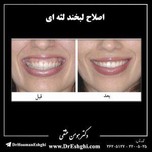 اصلاح لبخند لثه ای