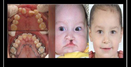 تاثیر شکاف کام یا لب بر روی دندان ها
