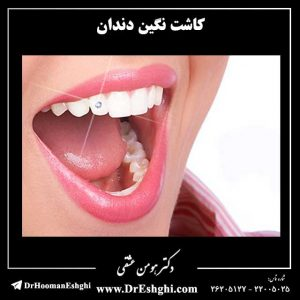 کاشت نگین دندان