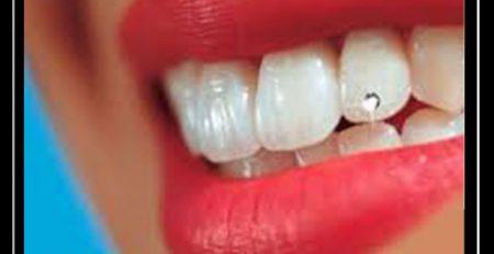 سوالات متداول کاشت نگین دندان