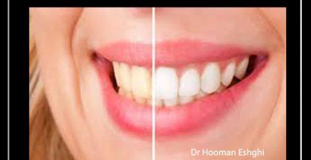 مزایا و معایب بلیچینگ دندان