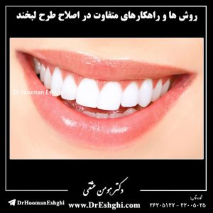 روش ها و راهکارهای متفاوت در اصلاح طرح لبخند