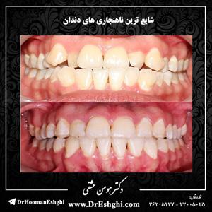 شایع ترین ناهنجاری های دندان