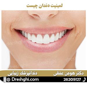 لمینیت دندان چیست