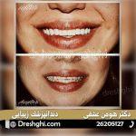لمینیت دندان 3