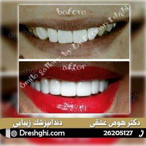 لمینیت دندان 5