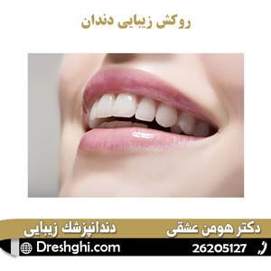 روکش زیبایی دندان