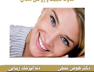 تفاوت لمینیت و روکش دندان