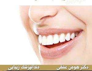هزینه-لمینت-دندان